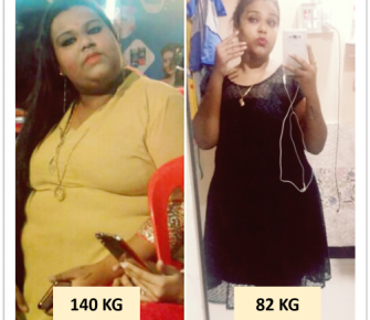 Best Bariatric Surgery, Weight loss surgery, obesity surgery before after photos in mumbai, india (1)