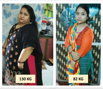 Best Bariatric Surgery, Weight loss surgery, obesity surgery before after photos in mumbai, india (3)
