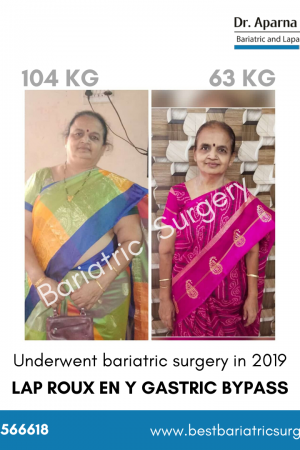 bariatric surgery for weight loss before after photos in mumbai, india (1)