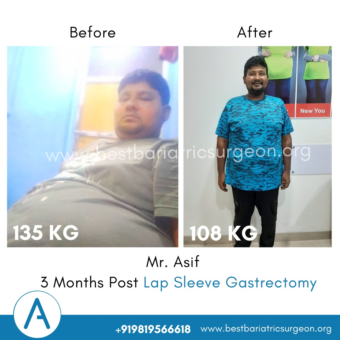 bariatric surgery for weight loss before after photos in mumbai, india