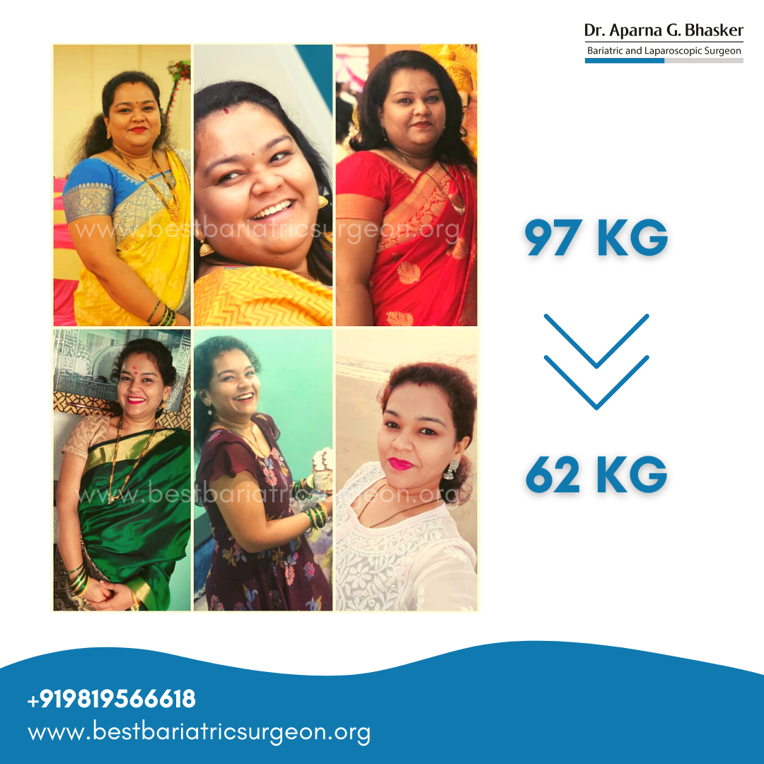 bariatric surgery for weight loss before after photos in mumbai, india (2)