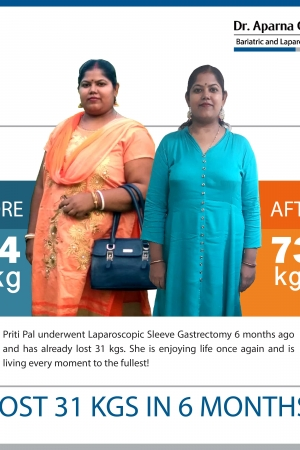 best Banded Roux-en Y Gastric Bypass bariatric surgery and weight loss surgery cost in mumbai india before after photos (5)