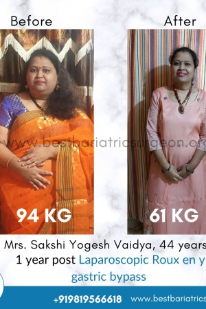 best bariatric surgery for weight loss before after photos in mumbai, india