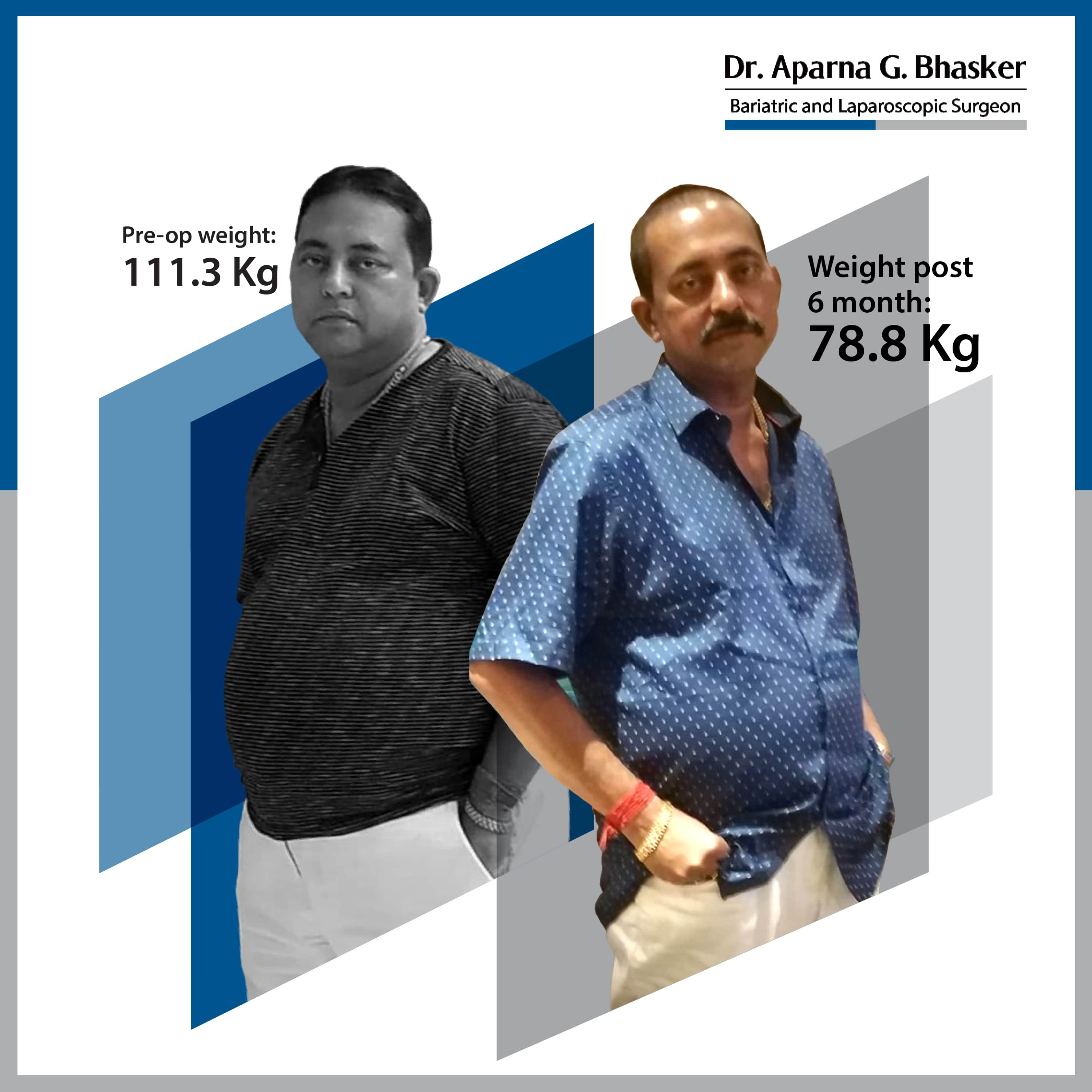 best Roux-en Y Gastric Bypass bariatric surgery and weight loss surgery cost in mumbai india before after photos (8)