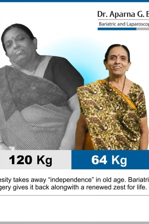 best Roux-en Y Gastric Bypass bariatric surgery and weight loss surgery cost in mumbai india before after photos (1)