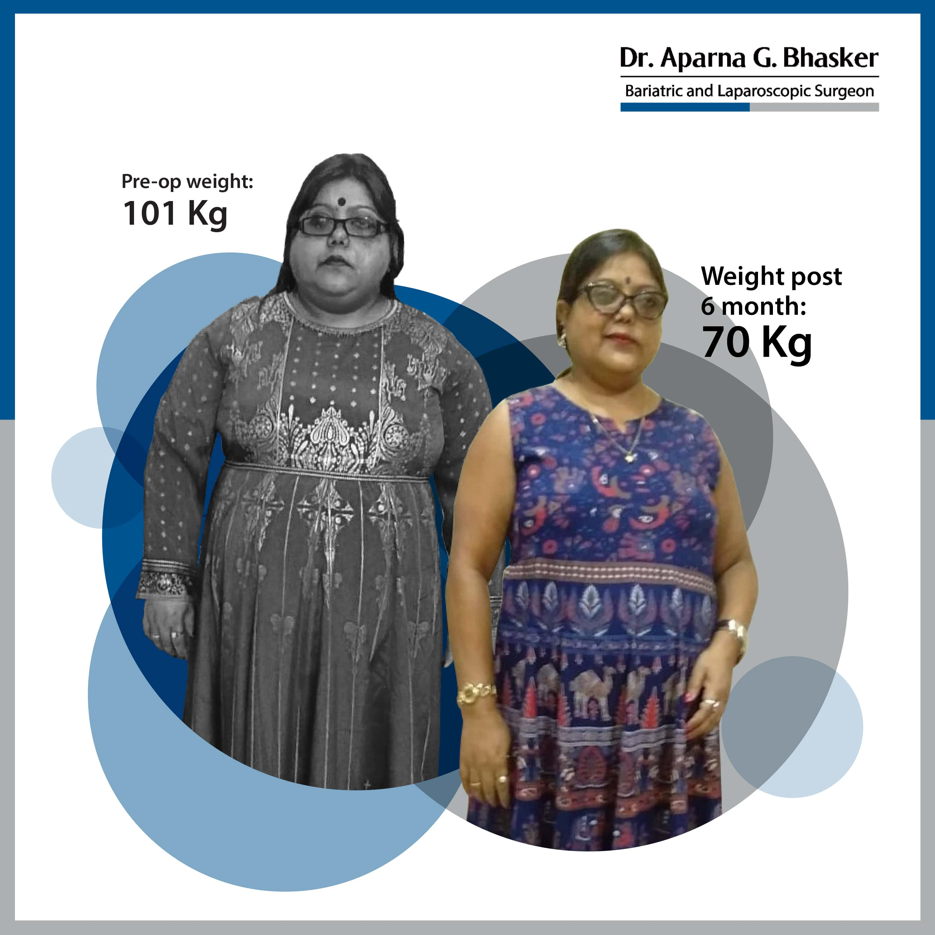 best Gastric Sleeve, Sleeve Gastronomy bariatric surgery and weight loss surgery cost in mumbai india before after photos (9)