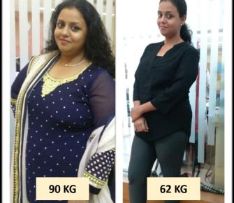 Best-Laparoscopic-Sleeve-Gastrectomy-surgery-before-after-photos-in-mumbai-india (2)