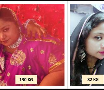 Best-Laparoscopic-Sleeve-Gastrectomy-surgery-before-after-photos-in-mumbai-india (5)