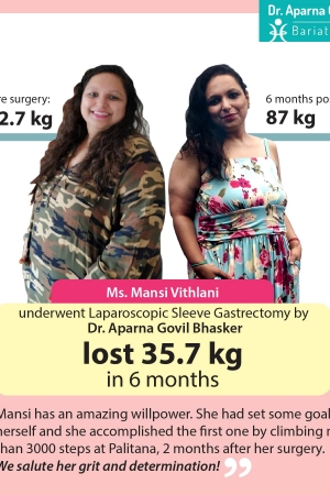 best Gastric Sleeve, Sleeve Gastronomy bariatric surgery and weight loss surgery cost in mumbai india before after photos (10)