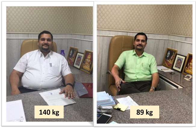 Best-Laparoscopic-Sleeve-Gastrectomy-with-Duodeno-Ileostomy-surgery-before-after-photos-in-mumbai-india (6)