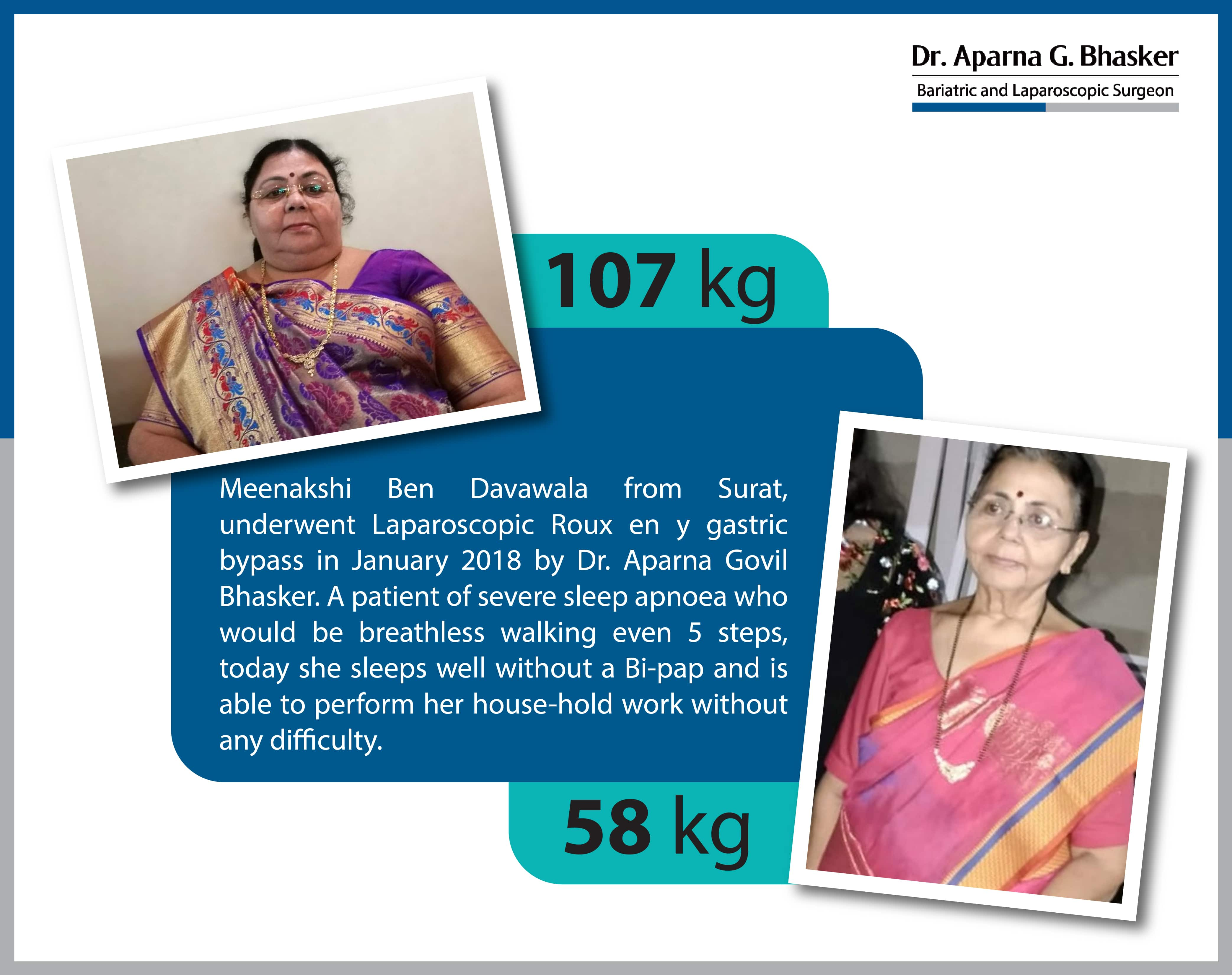 best Sleeve Gastrectomy with Duodeno Ileostomy bariatric surgery and weight loss surgery cost in mumbai india before after photos (4)