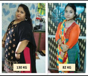 Best-Laparoscopic-Sleeve-Gastrectomy-with-Duodeno-Ileostomy-surgery-before-after-photos-in-mumbai-india (3)