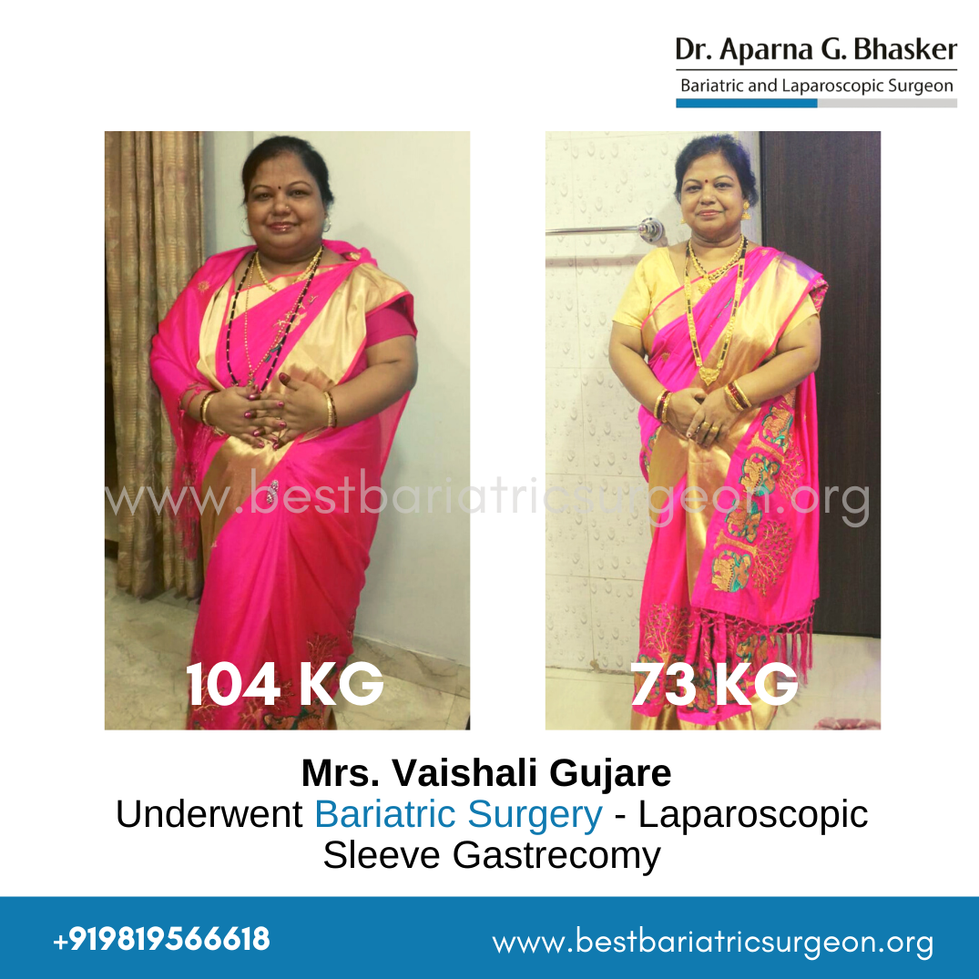 bariatric surgery for weight loss before after photos in mumbai, india (3)