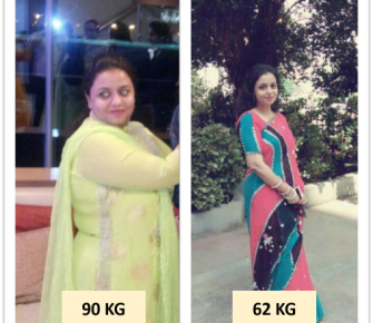 Best-Laparoscopic-Sleeve-Gastrectomy-with-Loop-Duodeno-Jejunal-Bypass-surgery-before-after-photos-in-mumbai-india (2)