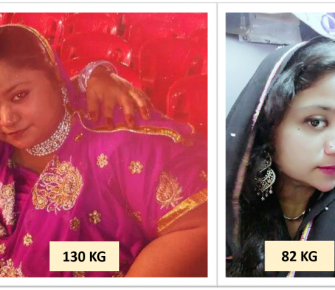 Best-Laparoscopic-Sleeve-Gastrectomy-with-Loop-Duodeno-Jejunal-Bypass-surgery-before-after-photos-in-mumbai-india (3)