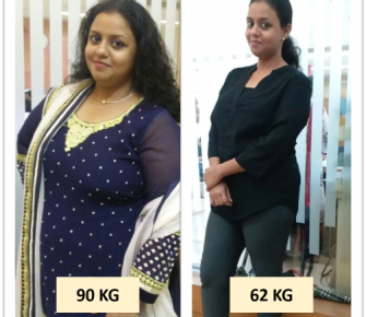 Best-Laparoscopic-Sleeve-Gastrectomy-with-Loop-Duodeno-Jejunal-Bypass-surgery-before-after-photos-in-mumbai-india (5)
