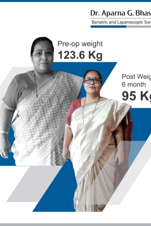best Sleeve Gastrectomy with Duodeno Jejunostomy bariatric surgery and weight loss surgery cost in mumbai india before after photos (2)