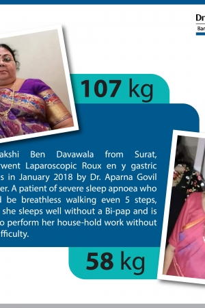 best Sleeve Gastrectomy with Duodeno Jejunostomy bariatric surgery and weight loss surgery cost in mumbai india before after photos (4)