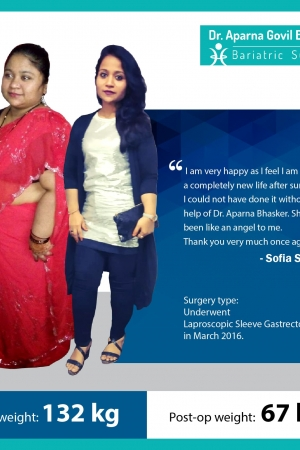 best Sleeve Gastrectomy with Duodeno Jejunostomy bariatric surgery and weight loss surgery cost in mumbai india before after photos (7)