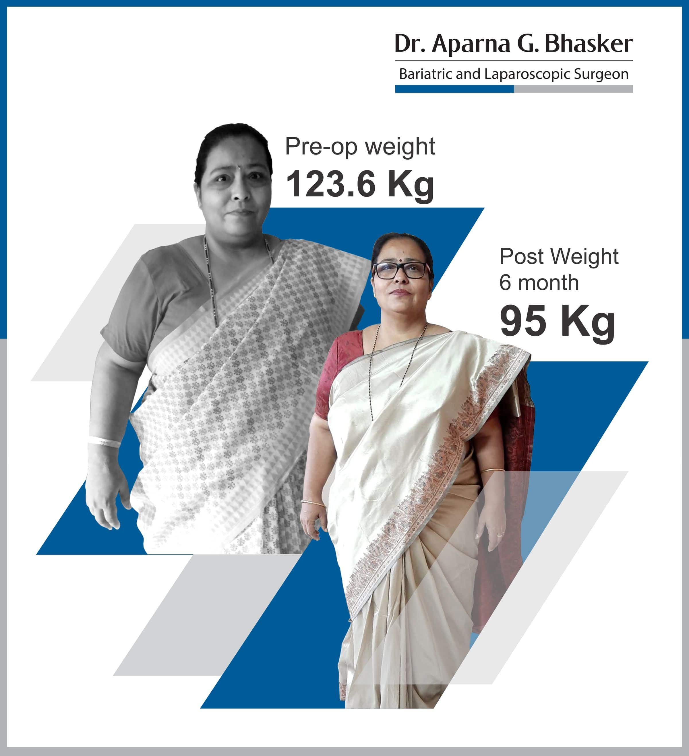 best metabolic bariatric surgery for diabetes weight loss surgery cost in mumbai india before after photos (2)