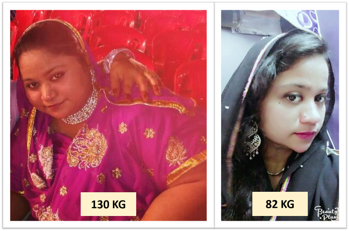Loss weight edmonton