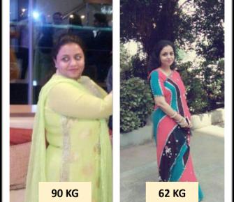 Best-Single-Incision-Laparoscopic-Sleeve-surgery-before-after-photos-in-mumbai-india (4)