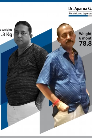 best Single Incision Sleeve Gastrectomy bariatric surgery and weight loss surgery cost in mumbai india before after photos (8)