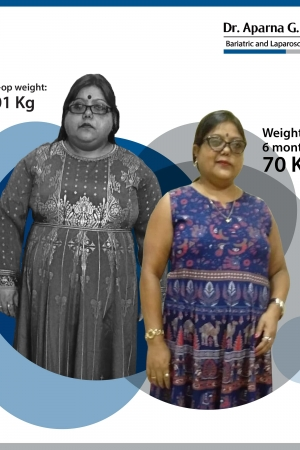 best Single Incision Sleeve Gastrectomy bariatric surgery and weight loss surgery cost in mumbai india before after photos (9)