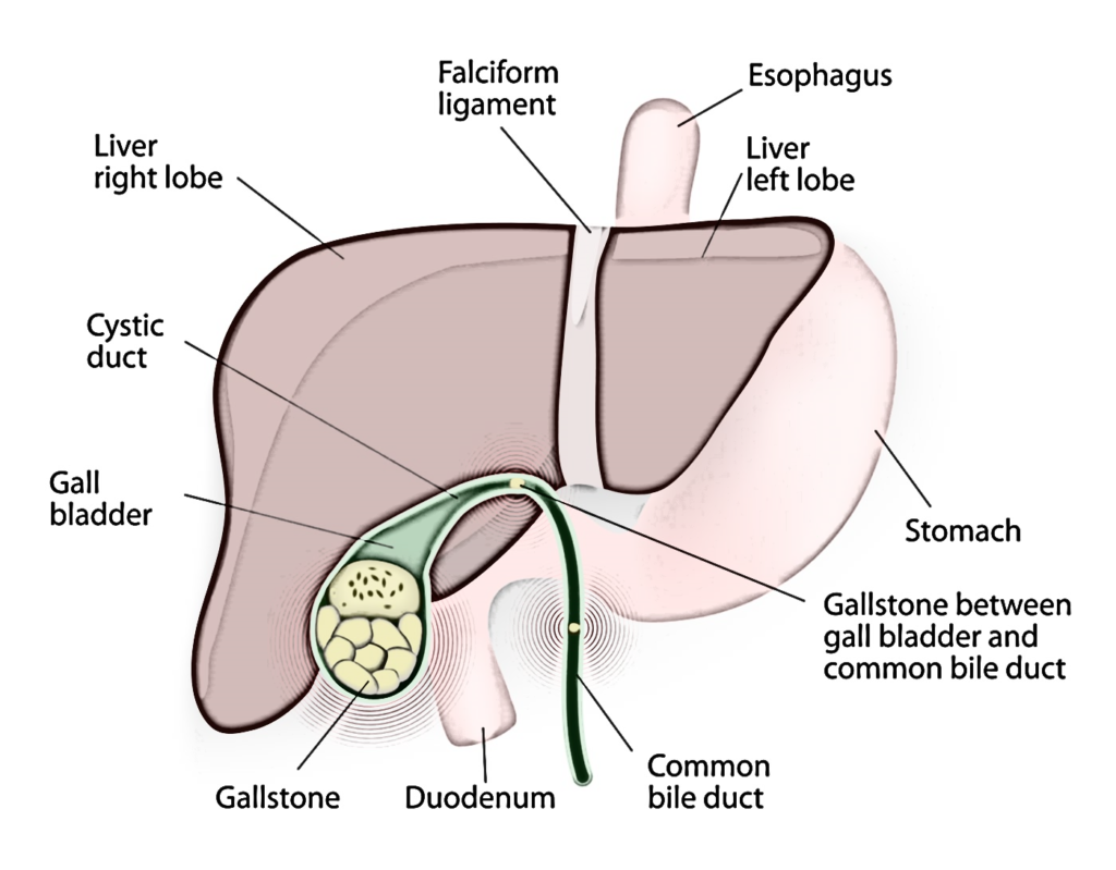 Laparoscopic Cholecystectomy Or Laparoscopic Gallbladder Stone Removal Surgery Or Laparoscopic Gallbladder Surgery in Mumbai, India