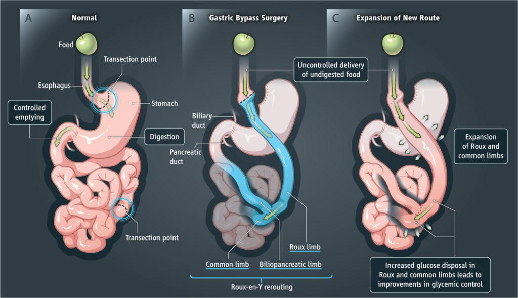 laparoscopic roux en y gastric bypass surgery in mumbai, india