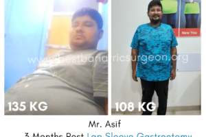 Before After result of Bariatric Surgery for Weight loss in mumbai, india by Dr Aparna Govil Bhasker