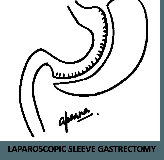 Laparoscopic Sleeve Gastrectomy Surgery in Mumbai, India by Dr. Aparna Govil Bhasker