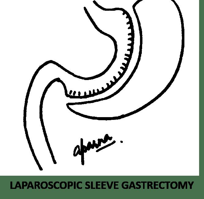 Best Laparoscopic Gastric Sleeve Surgery, Sleeve Gastrectomy in Mumbai, India by Dr Aparna Govil Bhasker
