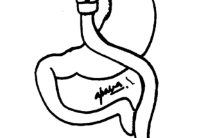 Roux-en y gastric bypass surgery in mumbai, india