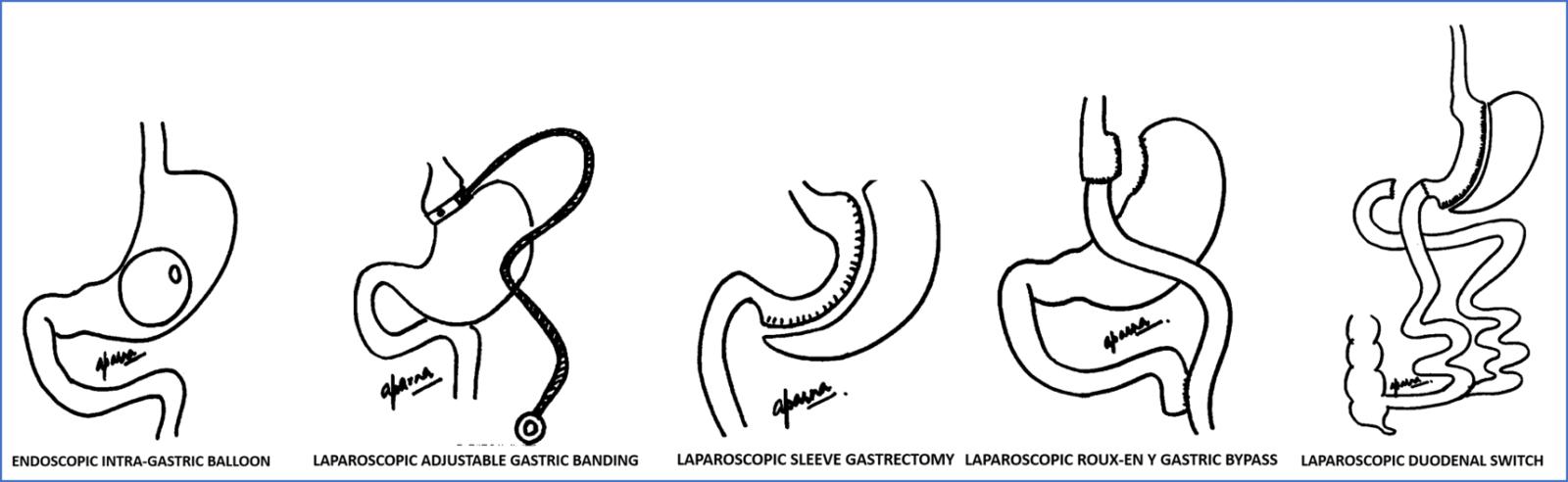 type of bariatric surgery in mumbai, india