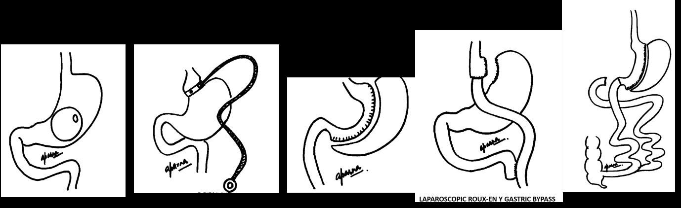 Types of bariatric surgery in mumbai, india