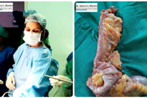 A Rare Case Of Non Hodgkins Lymphoma Of Appendix And Ileum