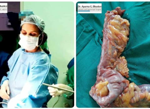 A Rare Case Of Non Hodgkins Lymphoma Of Appendix And Ileum