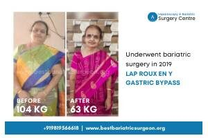 Patient Result of Bariatric Surgery in Mumbai, india for Weight Loss- Dr Aparna Govil Bhasker